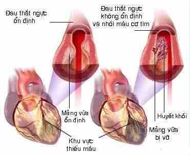 Bệnh nhồi máu cơ tim rất nguy hiểm